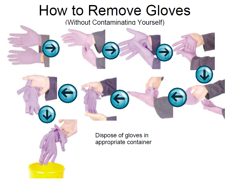 how to remove gloves without contaminating yourself